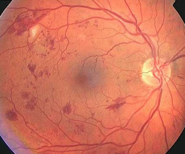 retinopatia-diabetica-1-Retinologo-Quito_